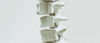 استفاده از نانوذرات مغناطیسی جهت درمان شکستگی استخوان